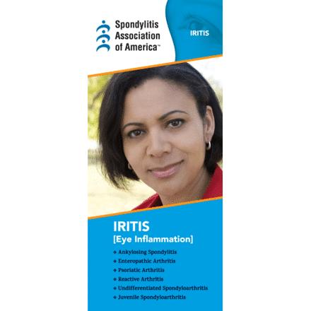 Iritis Brochure
